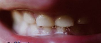 آیا همه چیز را راجع به دهان میدانید؟